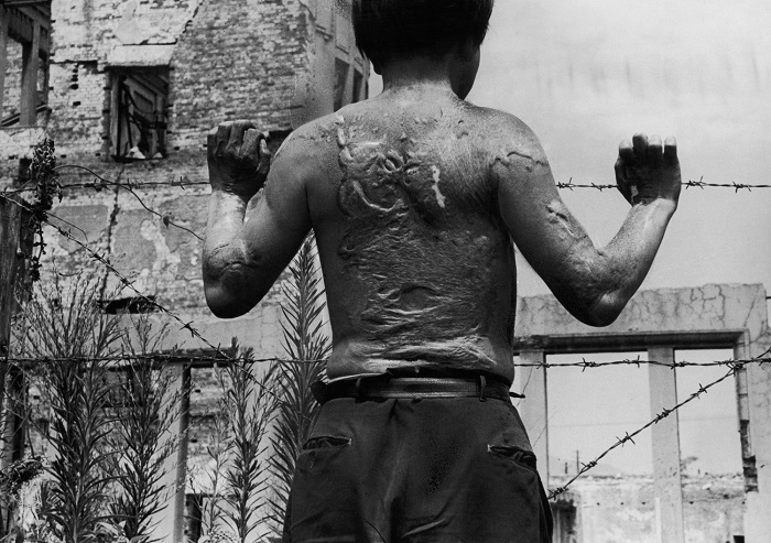 Kiyoshi Yoshikawa, a survivor of the atomic bombing of Hiroshima in 1945, displays the heavy scarring on his back, soon after leaving hospital, 13th August 1951. (Photo by FPG/Hulton Archive/Getty Images)